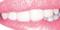 Start Up Pink - 10253